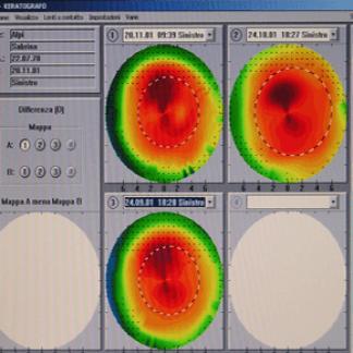 topografia corneale
